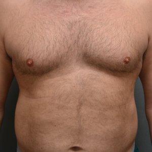 manhattan gynecomastia surgery before 3
